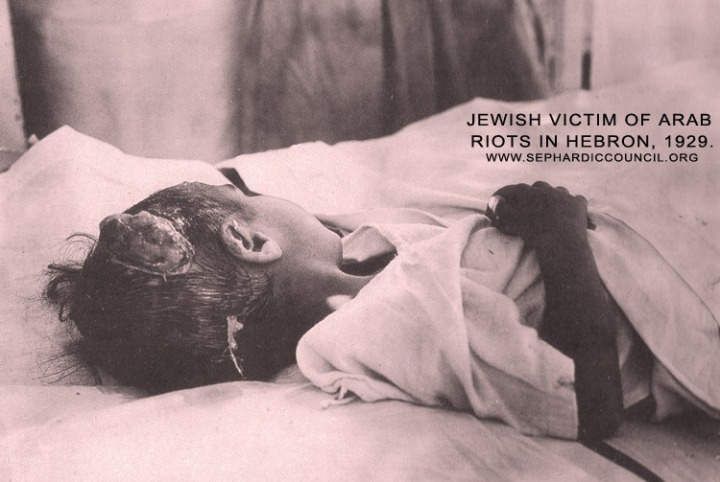 Jewish_child_victim_of_Arab_riots_in_Hebron,_1929