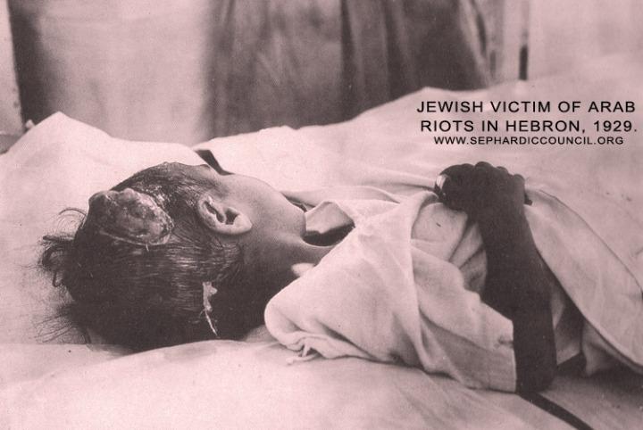 Jewish_child_victim_of_Arab_riots_in_Hebron,_1929